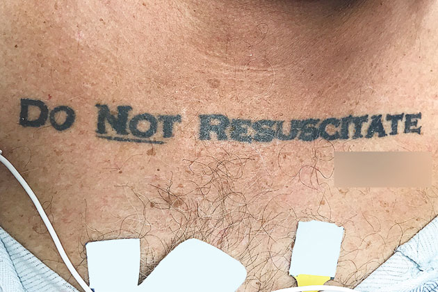 """Unconscious Patient with """"Do Not Resuscitate"""" Tattoo on Chest Receives Dying Wish in Miami Hospital"""