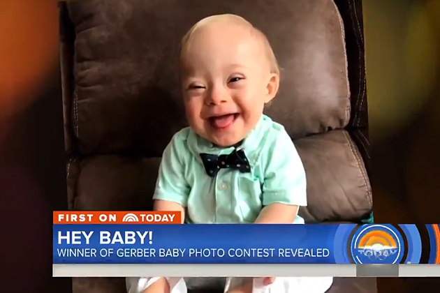 "VIDEO: Child with Down Syndrome ""Lucas"" Named 2018 Gerber Baby of the Year; Sheds Light on Special Needs"
